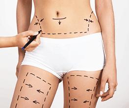 Cirugías de contorno corporal Dr Patricio Covarrubias